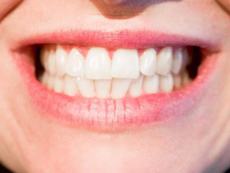 домашни третмани против кариес и жолти заби 2
