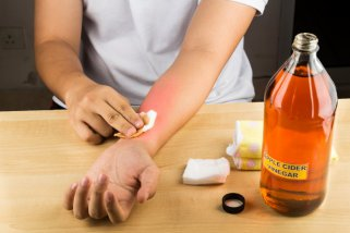 Ослободете се од непријатните кожни израстоци со помош на јаболкова киселина