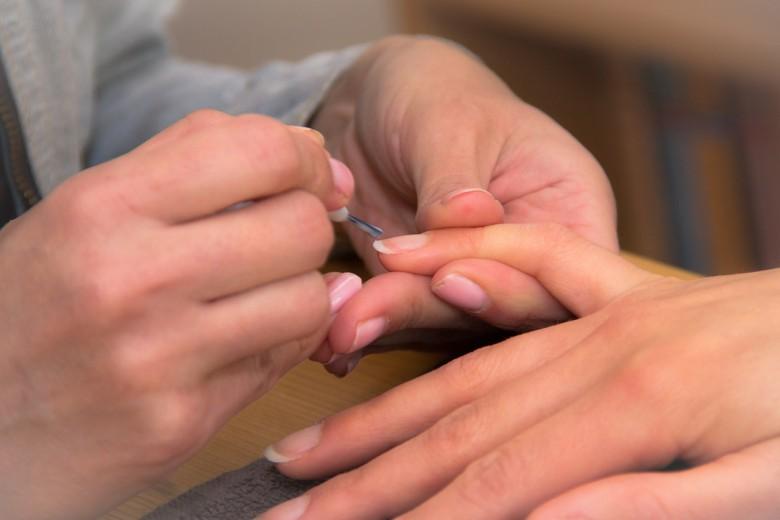 габична инфекција нокти