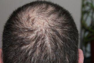 Најстар лек против опаѓање на косата и за раст на нови влакна 1