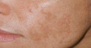 намалување на флеките на лицето