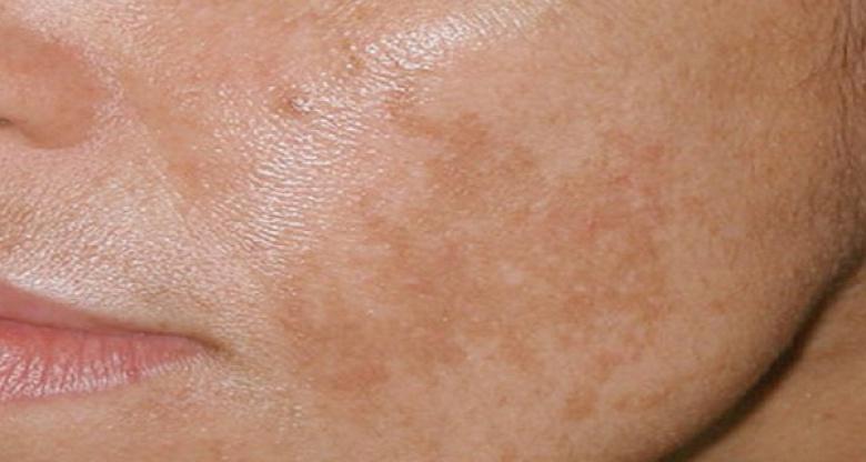 флеки на лицето