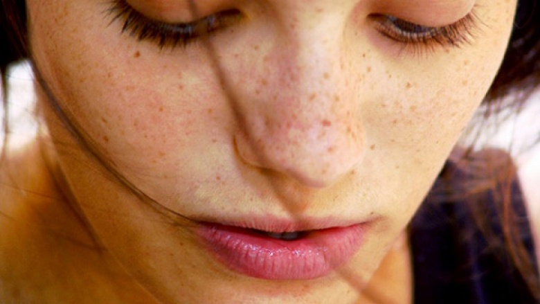 мелазма флеки на кожата