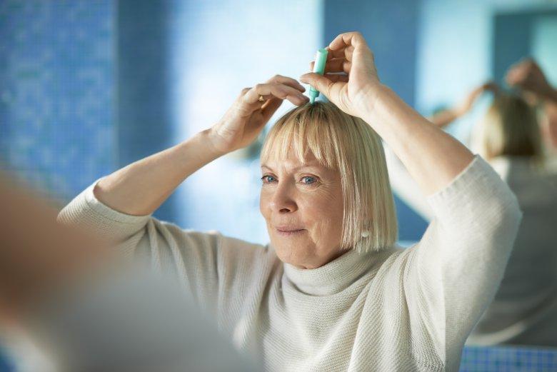 5 најчести причини за губење на косата 2