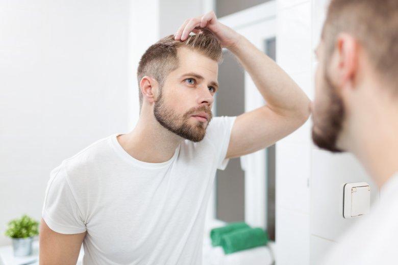 7 причини за губење на косата пред 25 годишна возраст 2