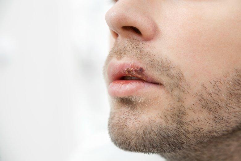 herpes na ustata 2